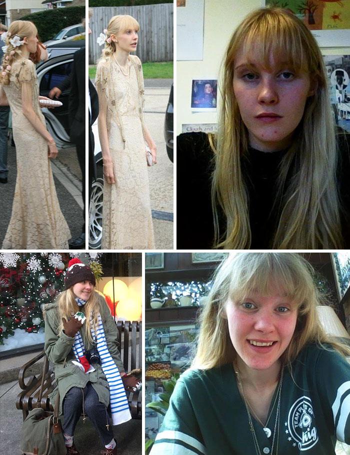 30位經歷厭食症「從喪屍變天菜」網友身體驚人對比照。#30 恐怖到需要打馬賽克!