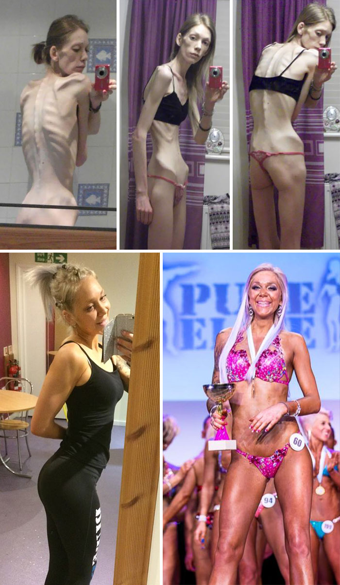 Nicola King, Who Was Told To Say Goodbye To Her Loved Ones When Her Eating Disorder Saw Her Organs Fail, Has Battled Her Way Back To Health And Was Crowned A Body Building Champion