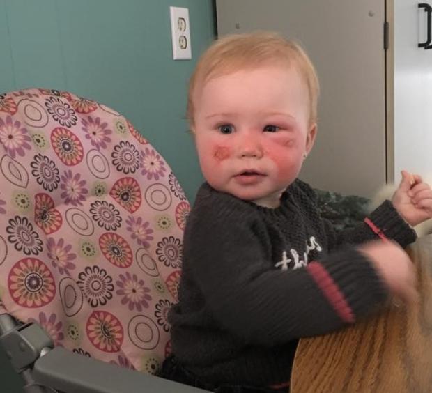14個月女兒「臉上突然長出水泡」又紅又腫,母親哭訴:為什麼「這個產品」還在架子上?!