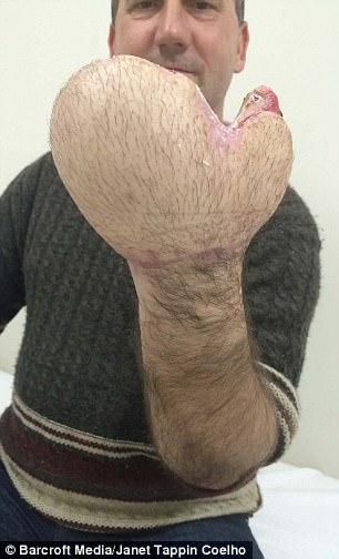 男子被迫截肢但醫生「把他左手縫進肚子口袋」,42天後手拿出康復後...太不可思議!