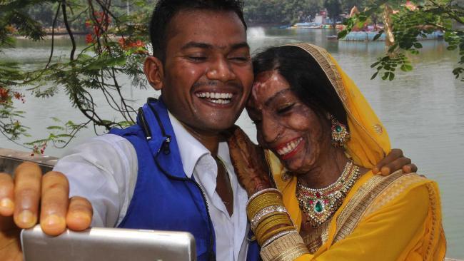 26歲印度正妹「遭表哥潑硫酸」嚴重毀容,「整形17次」沒人愛直到有天打錯電話...