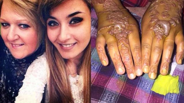 恐怖!22歲少女體驗「手繪紋身」,幾小時後「雙手全爛長水泡」像蚯蚓爬!