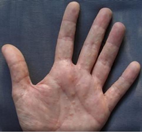 手指長出越撓越癢「超癢小水泡」?4種方法輕鬆把它們「消滅掉」!
