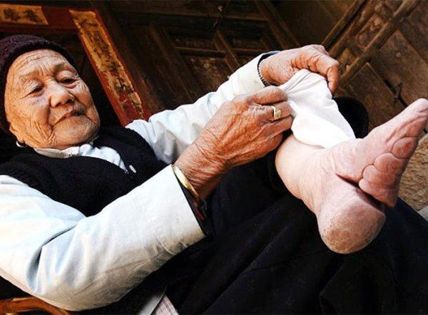 揭開中國傳統「比整形還極端」的纏足文化照片,「當用X光看」驚悚到像是PS出來的!(12張)