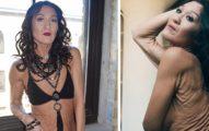 26歲女子患「鬆皮症」皮膚像70歲老人一樣鬆弛,穿上緊身衣「皮膚會撕裂」夢想成模特兒!