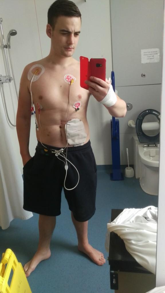 2年沒能上廁所!他24歲時一天「狂吐30次」以為嚴重流感,進行80次手術裝人工肛門「被人歧視」!