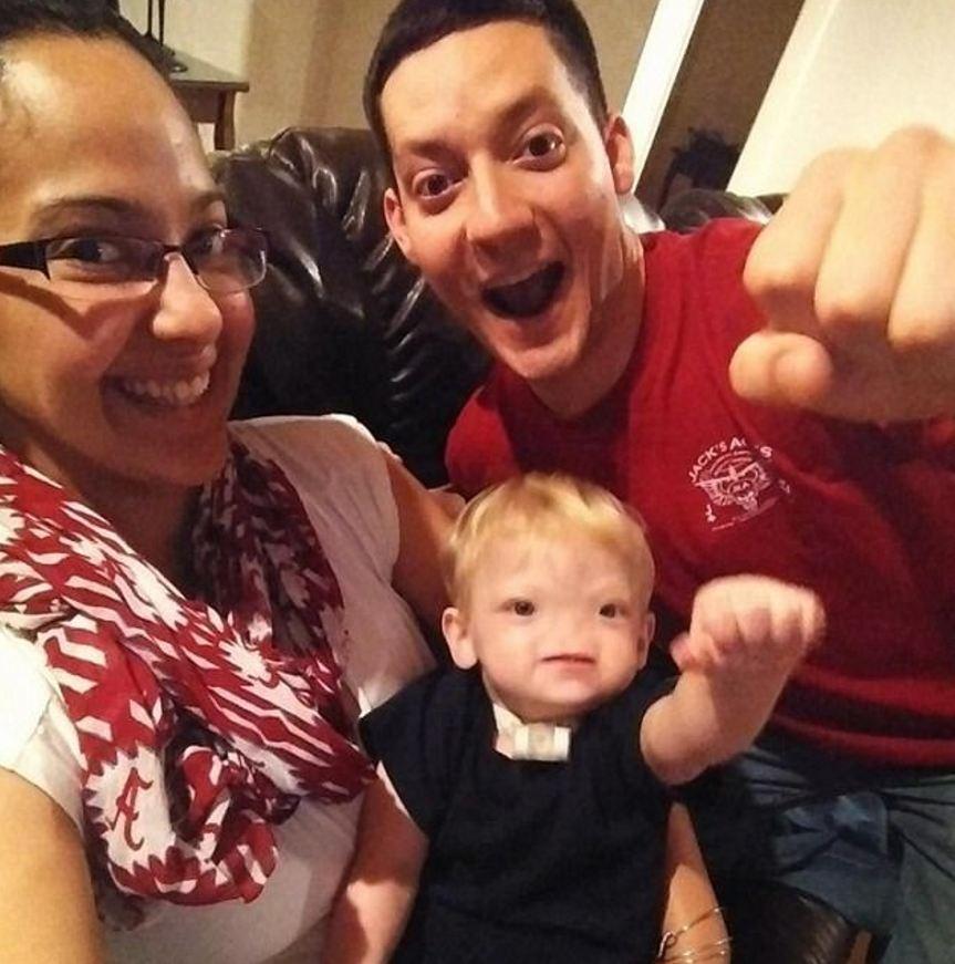 2歲男嬰患罕病「一出生就沒有鼻子」全球僅40例!「3月才剛開心慶生」現在卻永遠閉上了眼…