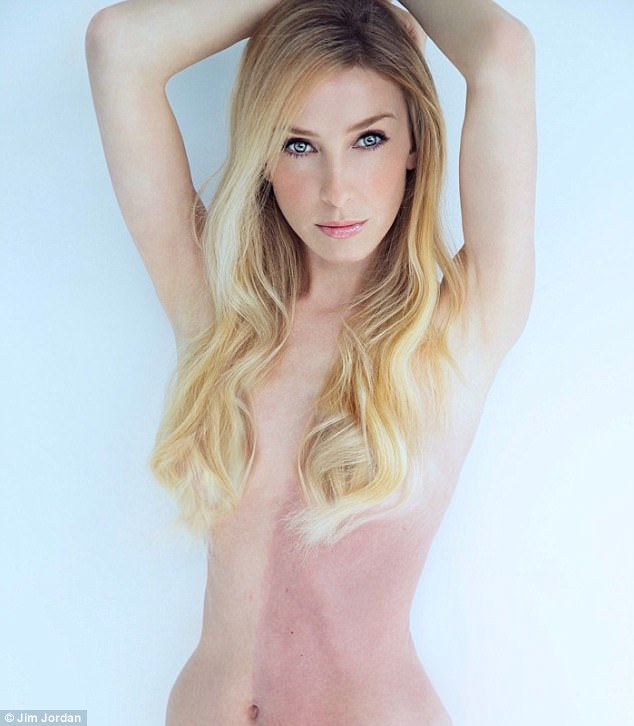Model and singer Taylor Muhl was born with a rare condition called Chimerism. The California native's torso is divided straight down the middle with her skin color on one side and her twin's pigmentation on the other (pictured)