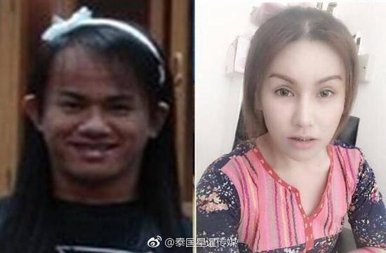 泰國變性人被嘲笑「太醜沒人要」還是不放棄,打拼後變正妹跟「帥氣小鮮肉」結婚!