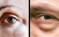 3個通常人不會注意,但身體已經在警告「你已經過敏」的徵兆!