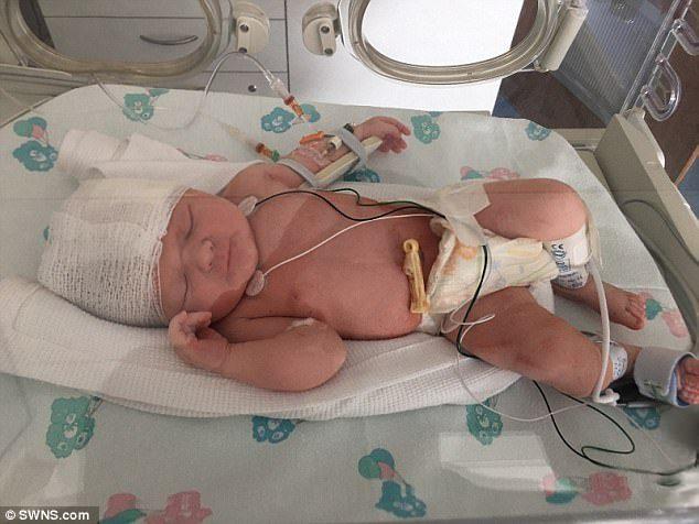 剖腹產要小心!寶寶慘遭割頭4公分傷口「再割深一點就死」醫院拒賠。