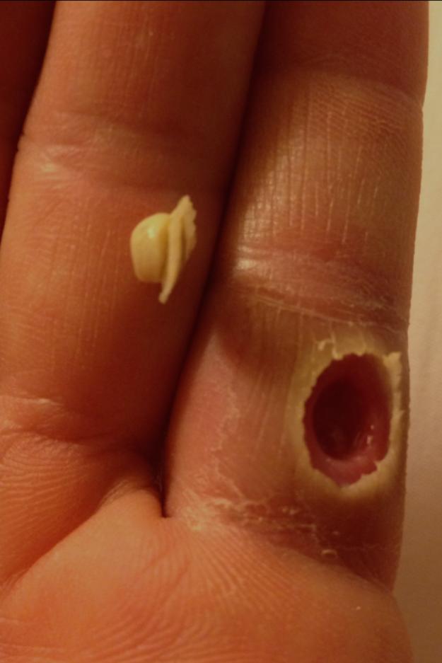 你有辦法看完全部療癒噁心的「擠痘照」嗎?最後一張會讓你吐得超乾淨!