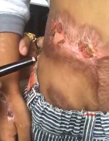 男童遭褓姆丈夫虐待「潑熱水懲罰」,下體嚴重燙傷不得已「放棄GG」...