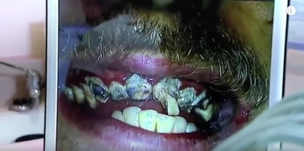 20年「沒刷過牙」沒看過這麼噁心的畫面,被醫生清理後顏值美化100倍! (影片)