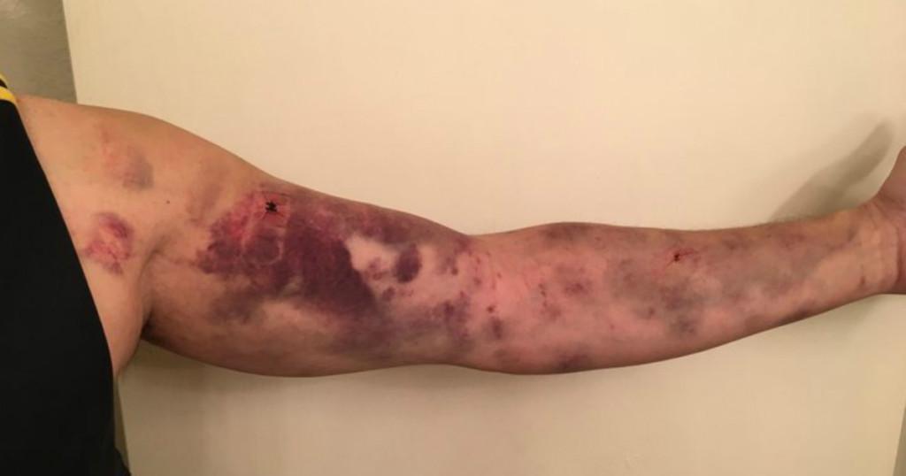 男子倒垃圾「被怪蟲咬一口」,幾小時後「整隻手臂瘀青」像被卡車輾過!