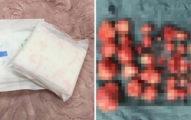 年輕人妻每次經期要用掉「4包衛生棉」,超音波一照發現是「110顆子宮肌瘤」作祟!