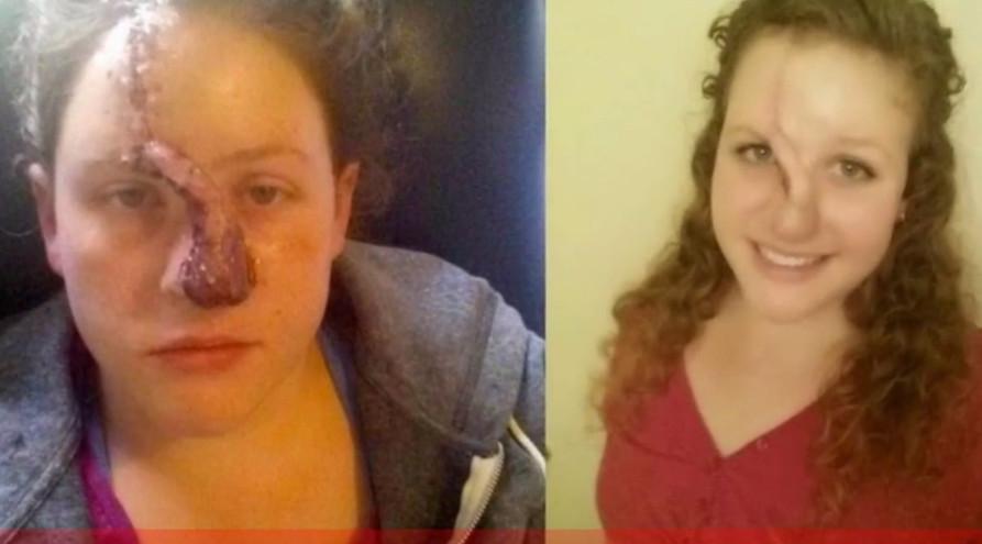 正妹患皮膚癌被逼「割掉鼻子」嚴重毀容,康復後疤痕長到像「科學怪人」一樣...