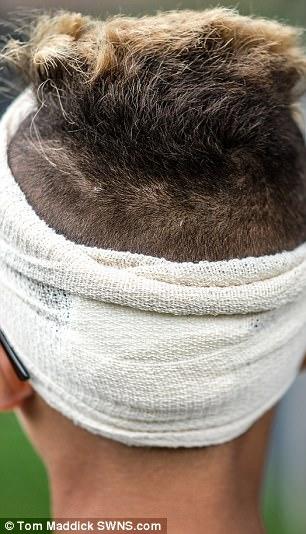 9歲男童回家路上被霸凌,頭裡「插進生鏽釘子的木板」...
