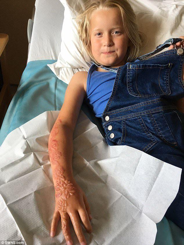 危險!7歲女童體驗「漢娜手繪」「整隻手永遠留下烙印」復原後更嚴重!