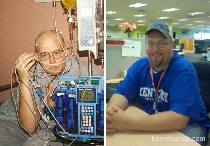 30張會讓你更加珍惜生命的「癌症患者之前 VS 勝利後」對比照!