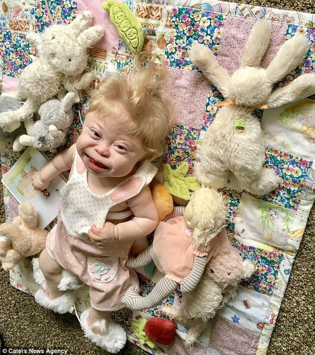 歷史僅72例!2歲女童「患百萬分之一罕病」活不過3歲,媽媽:把握每一天創造快樂回憶。
