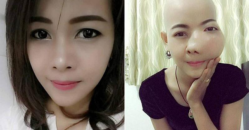 我不想死!正妹得腫瘤癌「五官變形牙齒脫落」遭網友譏笑「修圖」,嘆「變得不像自己了」昨日病逝...