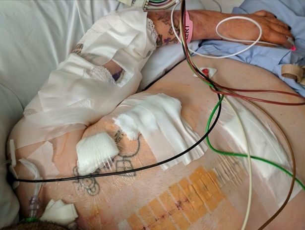 去不了醫院...39歲男臨終前「在臉書道別」,他:「我不想一個人死去。」