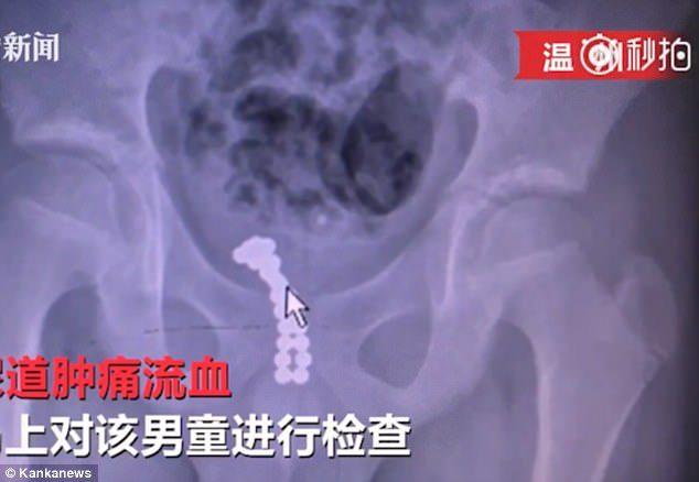 11歲男童把26顆磁球「塞進GG」結果尿血腫痛,醫生嚇壞只好「把磁球推進膀胱」!