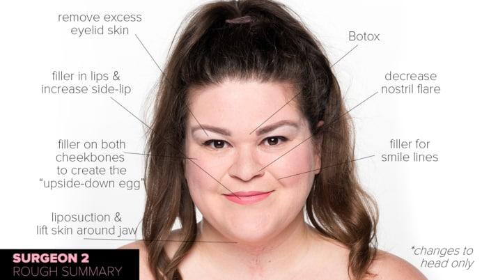 胖妹問3位整形名醫「會如何改變我的臉」?術前術後果讓你看清「不能亂找整形醫師」!