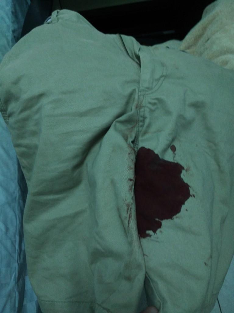 世界男性月經首例?他只是換個姿勢...低頭卻見褲襠「一大片濕濕紅紅」,GG流血流不停止