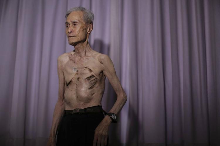 24張二戰美軍在日本投下2顆原子彈「人間地獄全紀錄」