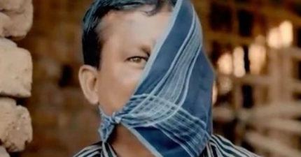被老虎「吃掉半張臉」23年來遭村民羞辱,「為了女兒幸福」終於把手帕拿掉!