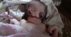 印度夫妻生下一名男嬰被嘲笑是「外星人」,他們認為畸形是「上帝的旨意」全身照驚人