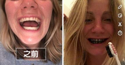 她決定放棄牙膏用「活性炭刷牙」,7天過後她做了牙齒照片前後比對...
