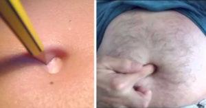 外科醫生解釋!為什麼「挖肚臍」會不舒服,想尿尿的感覺?