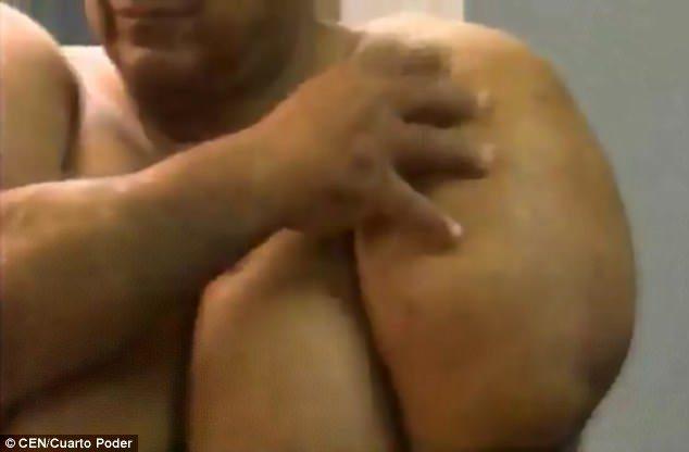 男子潛水後「變成綠巨人」身體膨脹2倍 「浮上水面」時出錯了!