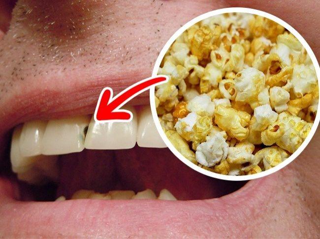 10個台灣人常常吃「但會嚴重損害你的牙齒」好吃食物。