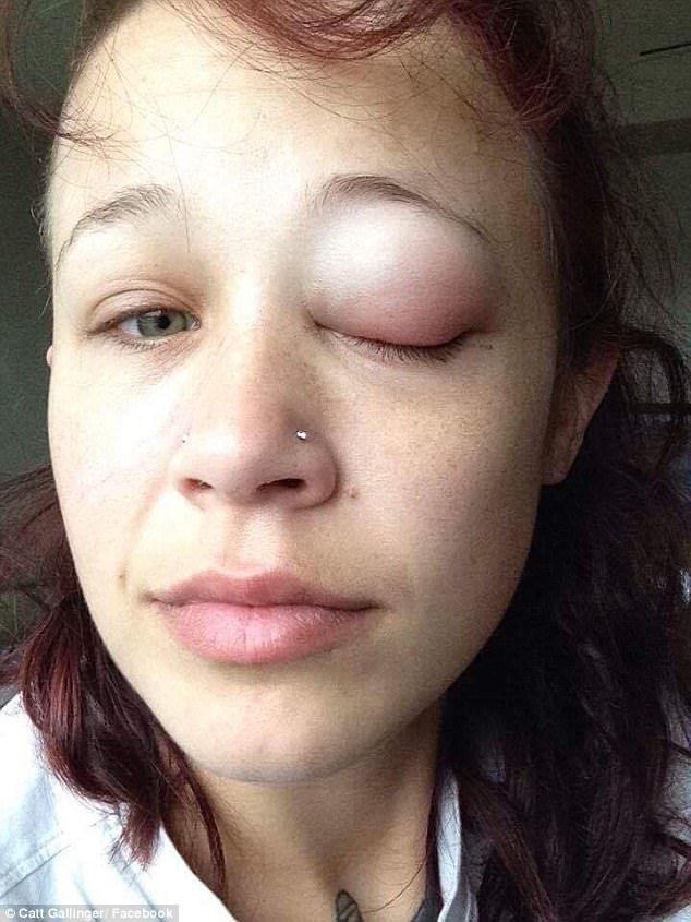 正妹挑戰眼白上刺青最後「流出紫色眼淚」,導致視力嚴重受損「她警告大眾」!(圖片慎入)