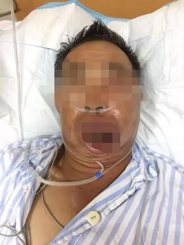 男子因「擠嘴唇上一顆痘痘」收到病危通知,以為只是痘痘差點死亡