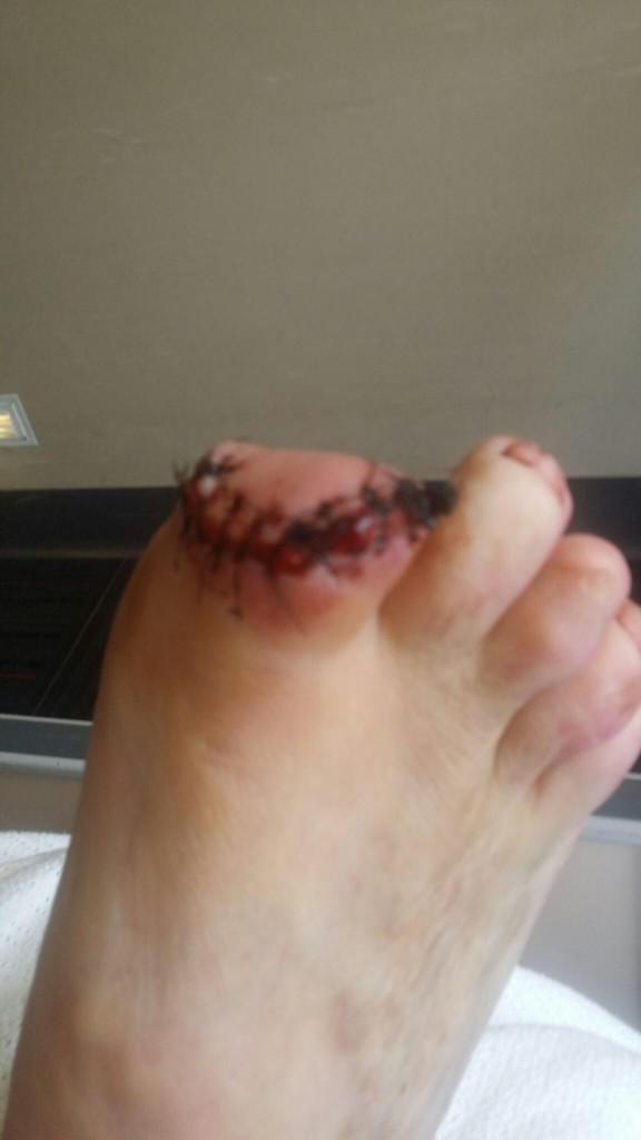 小心糖尿病!起床看到腳邊都是血,才發現「食人吉娃娃」趁主人熟睡時把腳趾啃了...