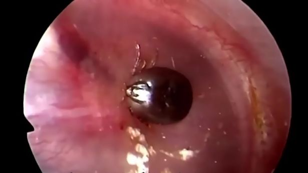 耳朵突然爆痛,醫生硬拔出來的剎那網友都快吐了...(影片)