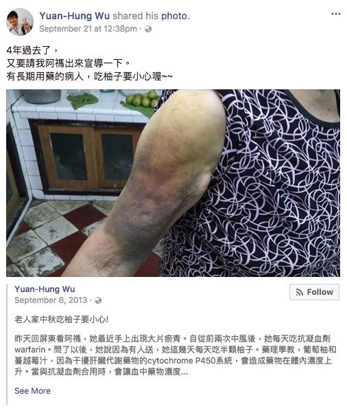 中秋節吃柚子讓阿嬤「手臂整塊瘀青」,醫生呼籲有服用這類藥物的民眾要小心!
