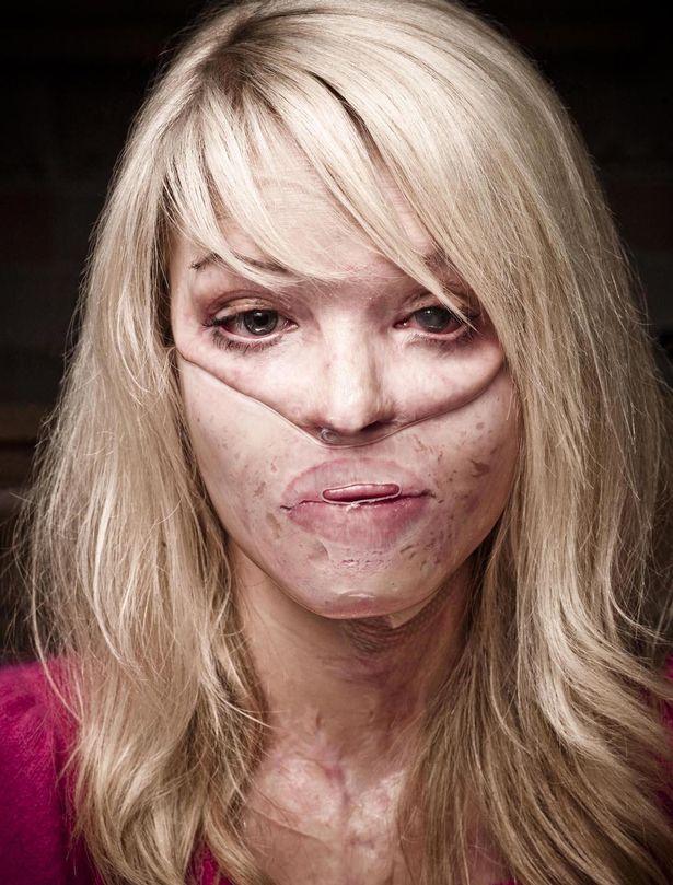 她曾碰上「恐怖情人」被潑硫酸毀容,10年後「努力重生的她」笑容比以前更加迷人!