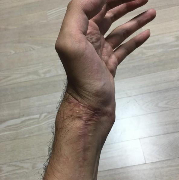 韓男團吉他手「左手壞死截肢」星途全毀,他激動發文:我很憤怒