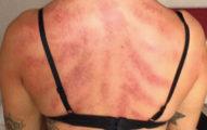 按摩師PO出客人「滿是瘀點」刮痧照,原來「髮型師」都是有苦說不出!