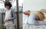 女子懷孕8個月卻「月月有經血」,詳細檢查後立刻進行「高風險手術」!