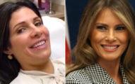 42歲媽媽覺得自己「長太醜」花上百萬整形成美國第一夫人「梅蘭妮亞」,改造後已看不出差別!