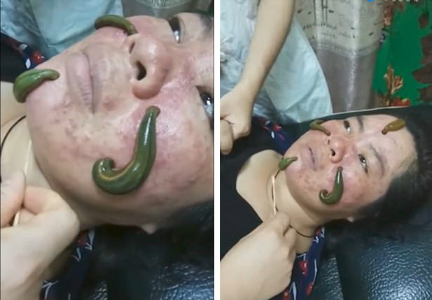 噁爆!強國女任「4條肥水蛭在臉上爬」吸除痘痘...美容師強調:「除逗、皺紋、老人斑」(影片)