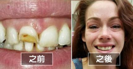 被男友家暴牙齒打斷沒錢補,去拔牙牙醫竟偷偷免費「還她美美笑容」一看鏡子暖哭