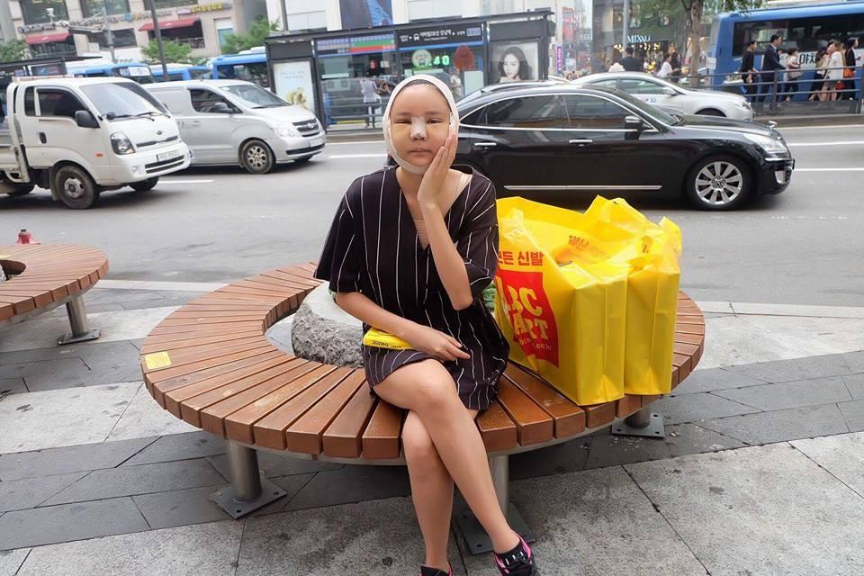 泰国网红整形完「猪头脸」照血拼,复原后证明一切都值得的! -2024701
